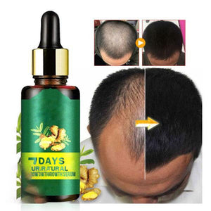 7Days Hair Regrowth Serum - Secret Lake Store