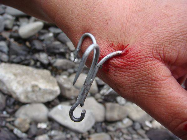 Horrific Fishing Hook Accidents That Will Make You Look Twice