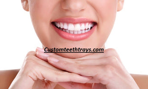 Custom Teeth Trays