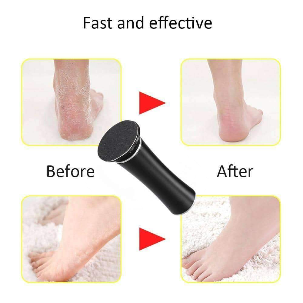 [leggycozy] Rechargeable Electric Files Pedicure Foot Callus Remover