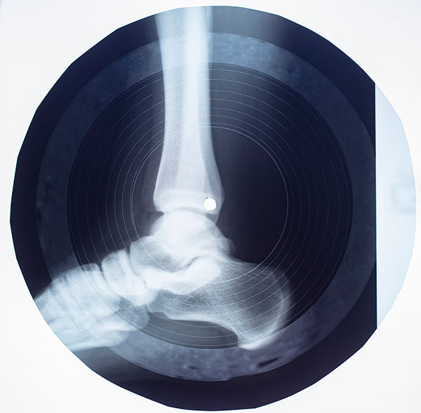 Neil Harbisson: X-Ray Record (Original Artwork)