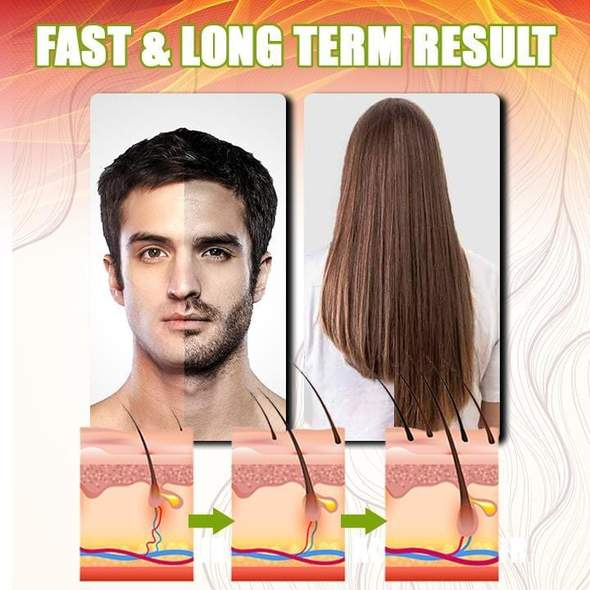 GingerGrowth™ Anti-Hair Loss Spray