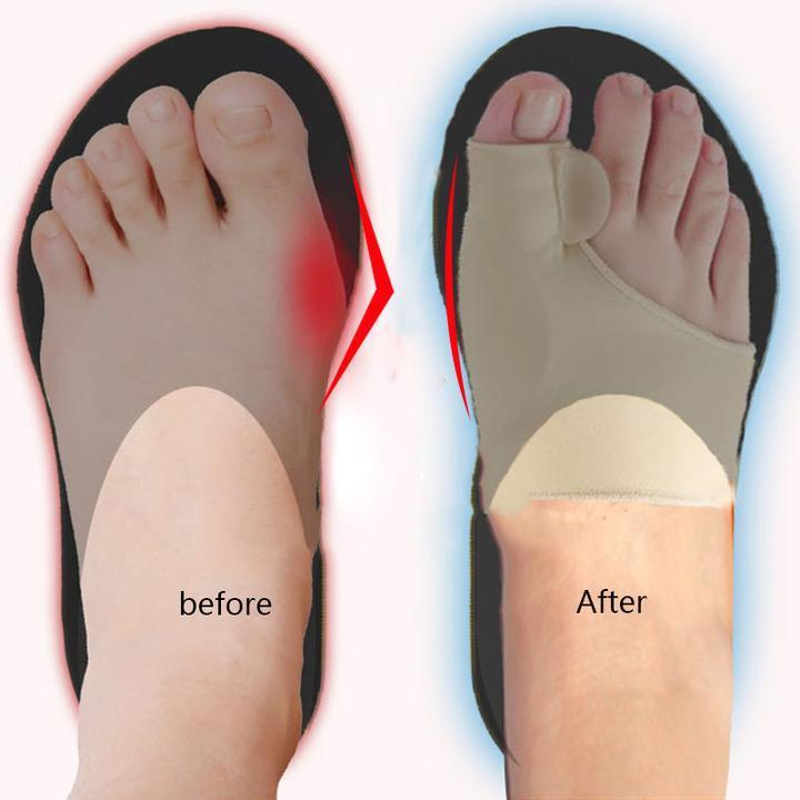 Foot Brace™ - Protect Your Toes