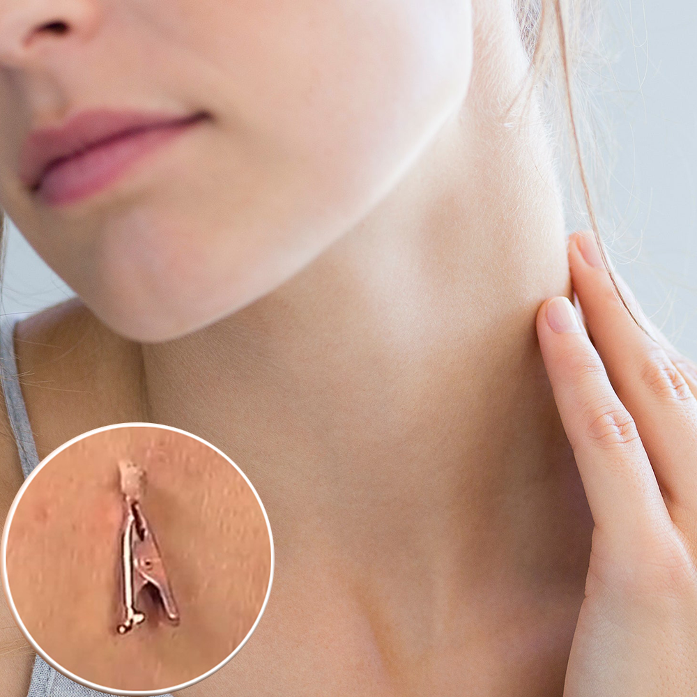 Copper Tag Out ——Skin Tag Remover