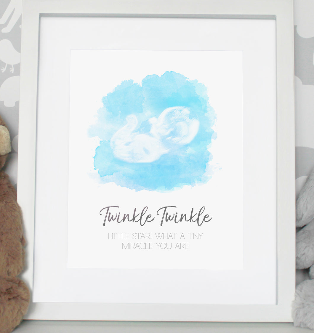 Baby scan photo print - Lighter Blue