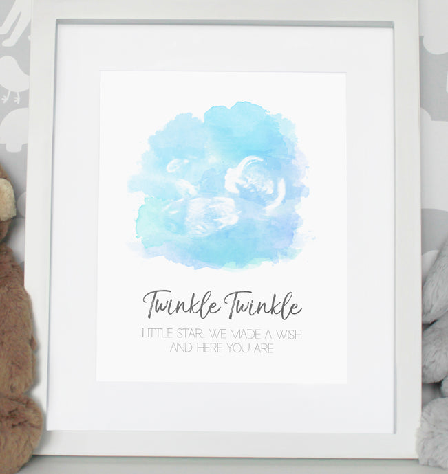 Baby scan photo print - Blue/Green