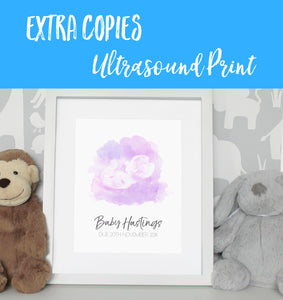 Baby Ultrasound print - Extra copies