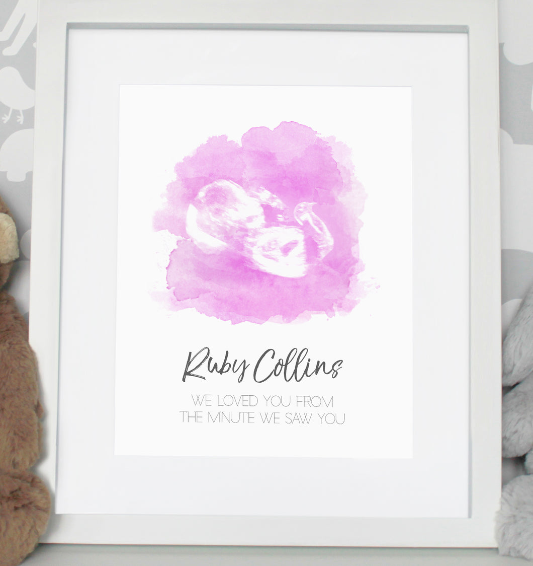 Baby scan photo print - Pink
