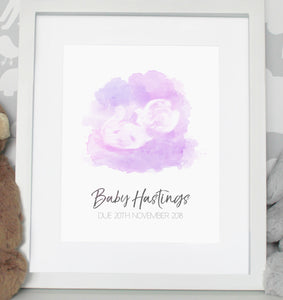 Baby scan photo print - Lighter Pink