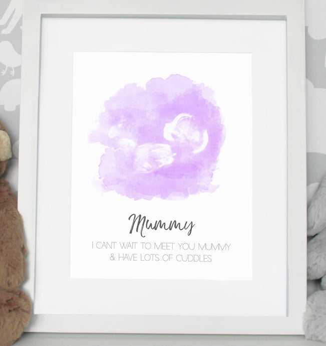 Baby scan photo print - Purple