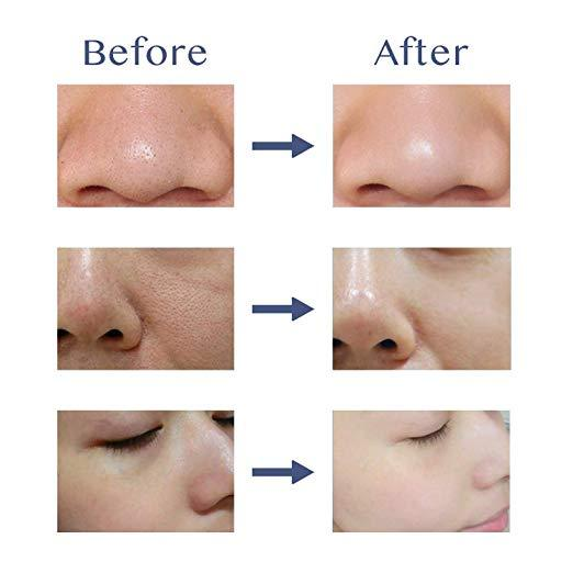 New Year special price 70% OFF Ultrasonic Facial Pores Cleaner