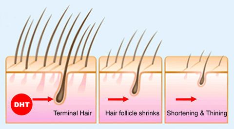 hair loss cycle