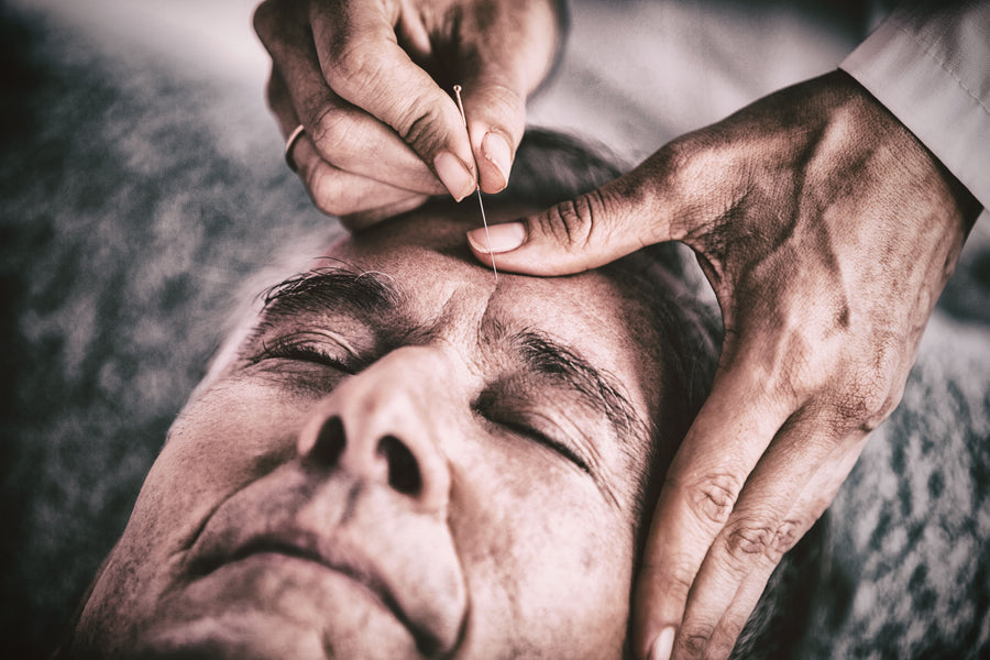 Holistic Healing?  Part 1: The Benefits of Acupuncture