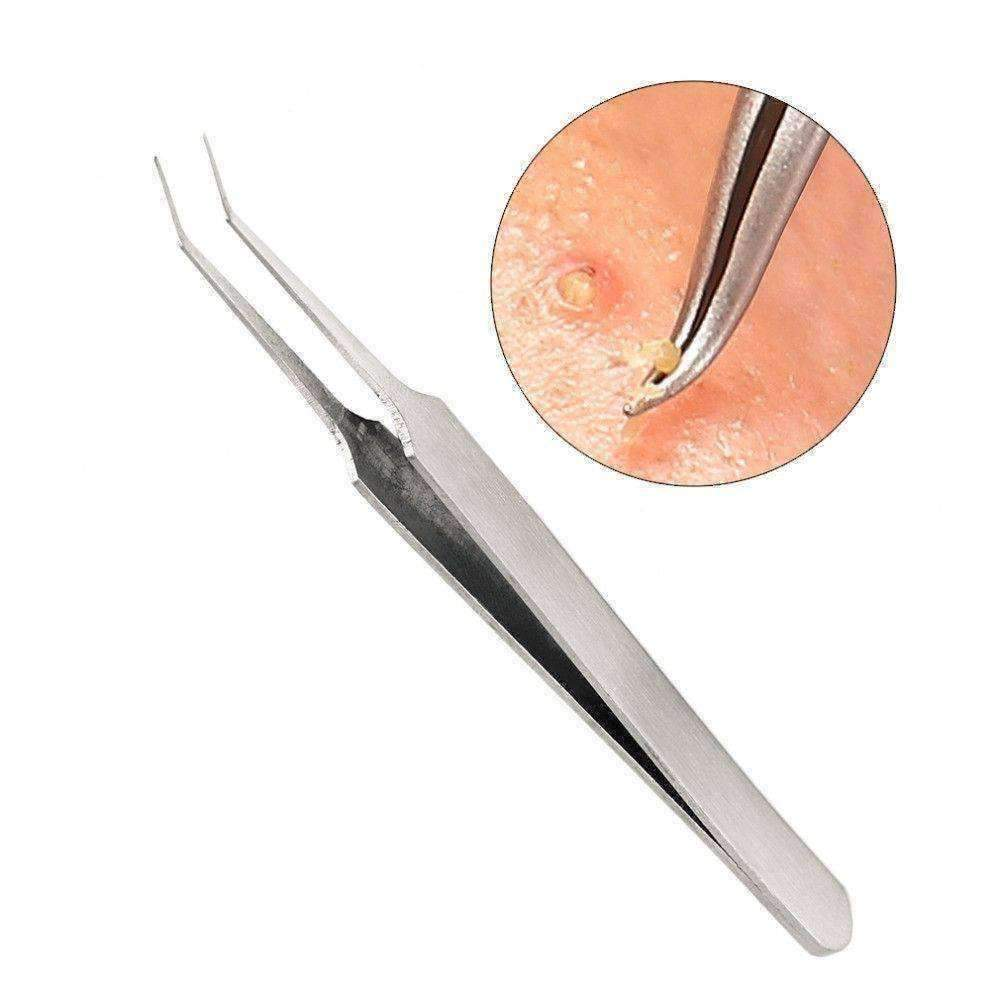 3 Piece Comedone Extraction Tweezers