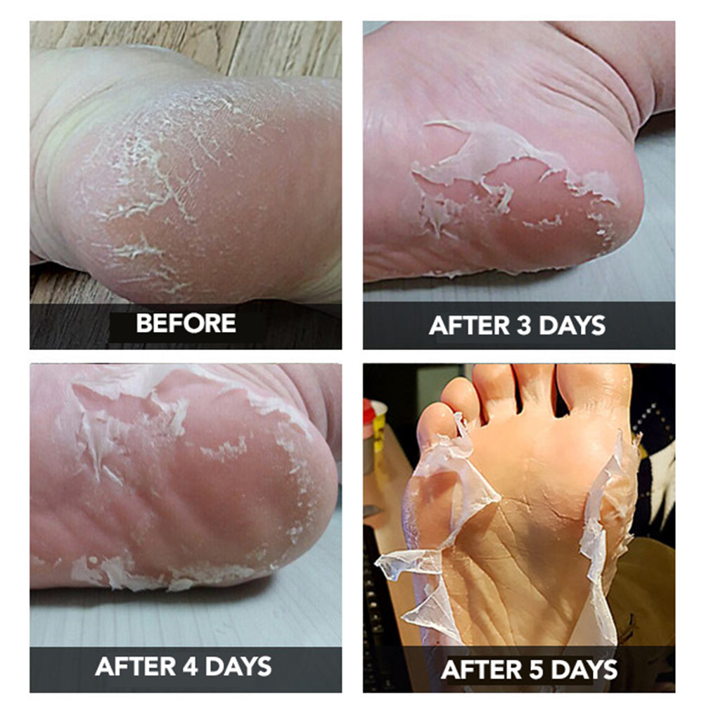 Sala&Su Foot Peeling Mask Product Description 2