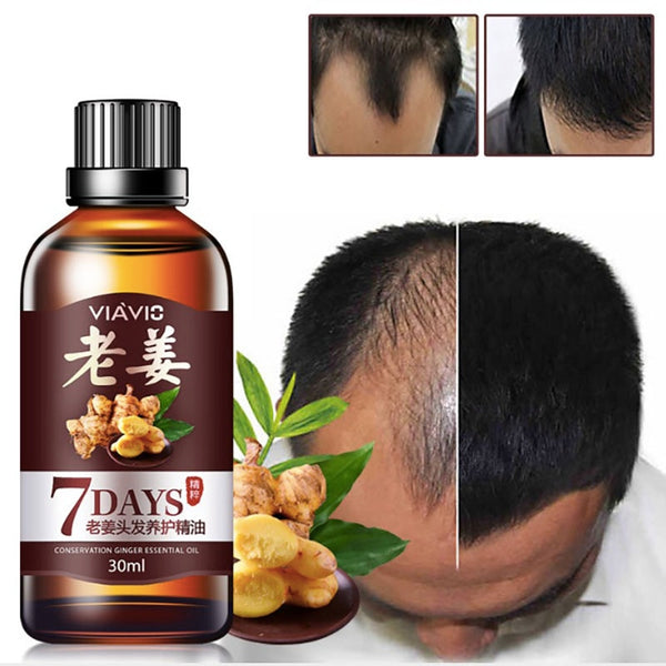 New Hair Care Fast Powerful Hair Growth Products Regrowth Essence Liquid Treatment Preventing Hair Loss For Men Women 30ML