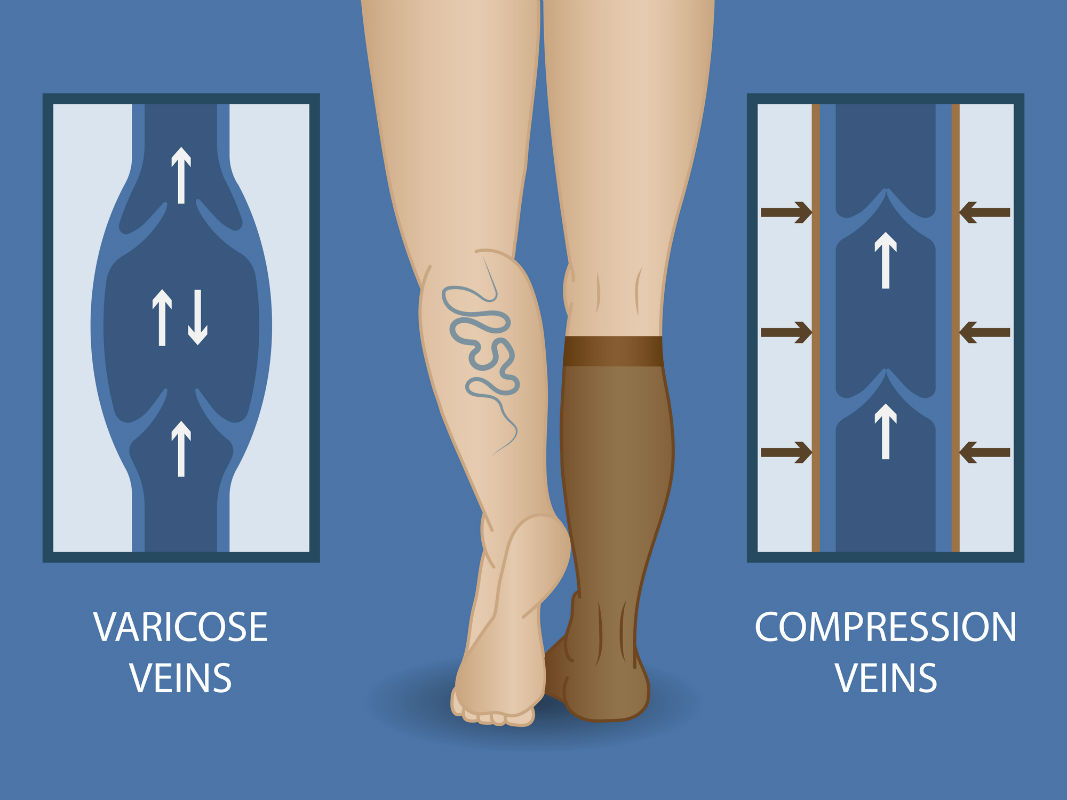 Why-Should-Nurses-Wear-Compression-Socks