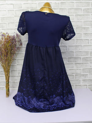 Short Sleeve Lace Stitching Print Casual Dress