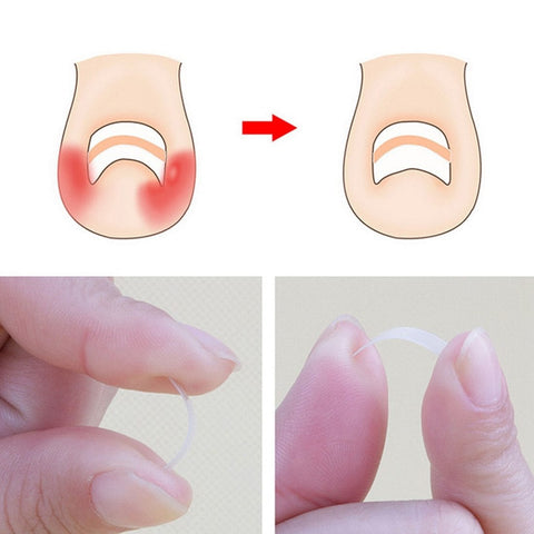 Ingrown Toe Nail Correction Sticker