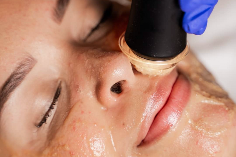 Woman getting Oxygeneo Oxypod Vitamin C Facial