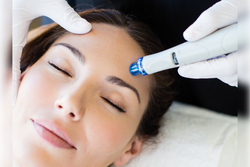 Woman getting Hydrafacial Signature