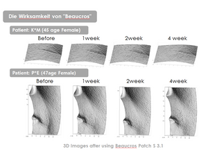 [BEAUCROS] Micro Needle Patch Eyezone - CHOMIMO