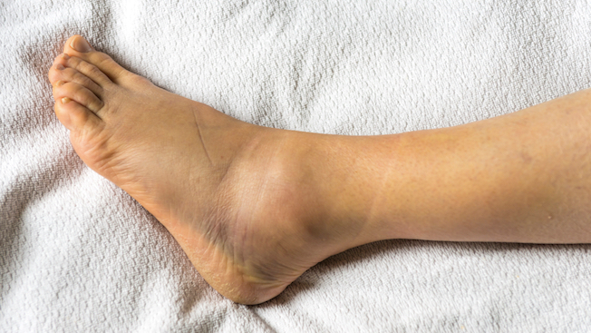 How to Best Heal an Ankle Sprain - Ortho Bracing