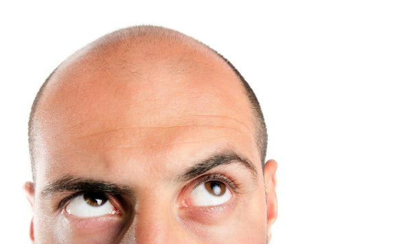 What is it like really to have a hair transplant - everything you need to know