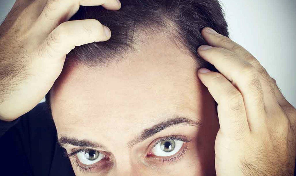 mens hair loss norwood scale|norwood scale for men|Male hair loss baldness||stages of balding