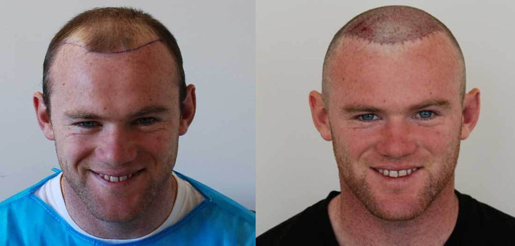 Do hair transplants really work?  - 10 facts you need to know!