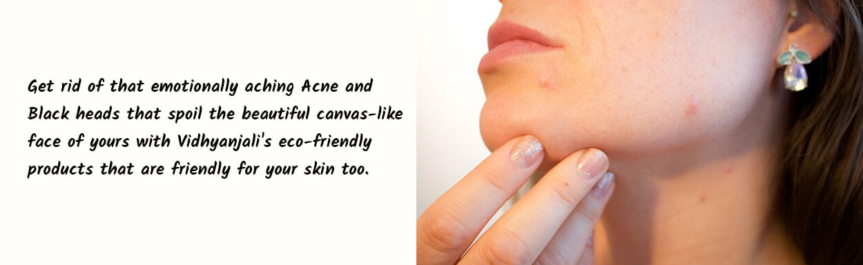 Acne Black head removal
