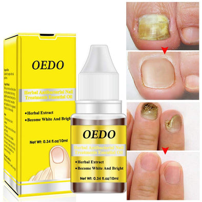 OEDO™ Herbal Antibacterial Nail Treatments Essential Oil