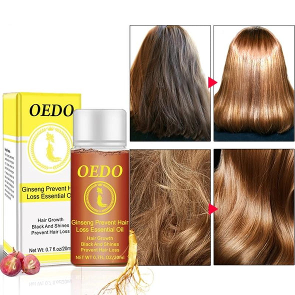 OEDO™ Ginseng Preventing Hair Loss Essential Oil (20ml)