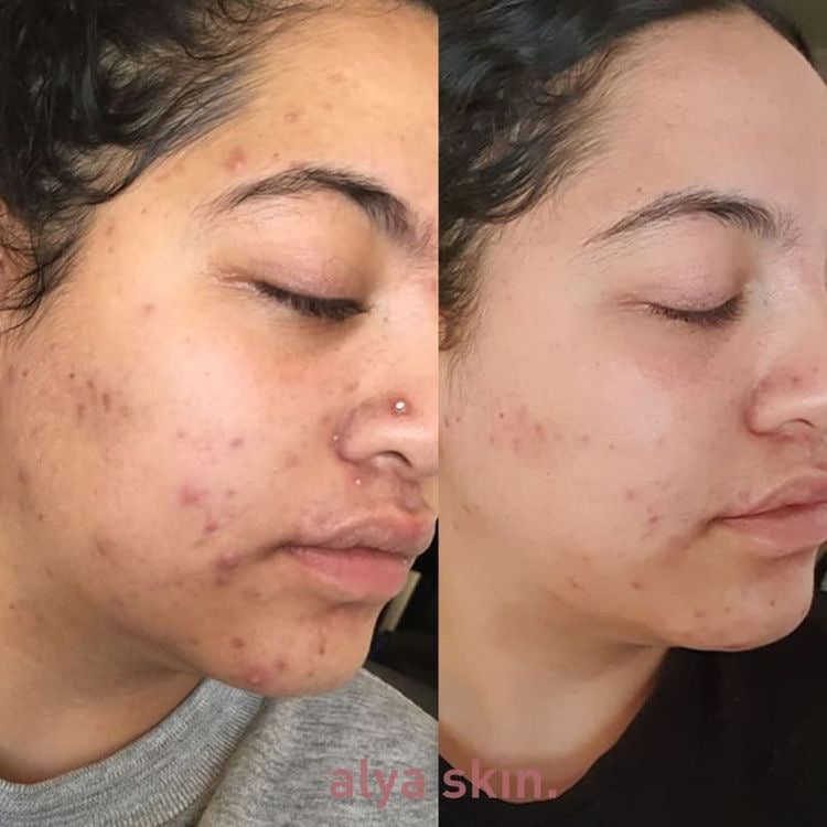 Alya skin before and after 1