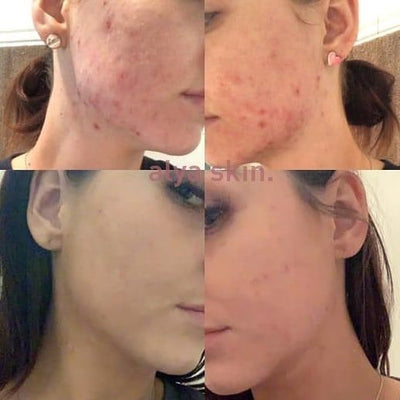 Alya Skin Before and After 2