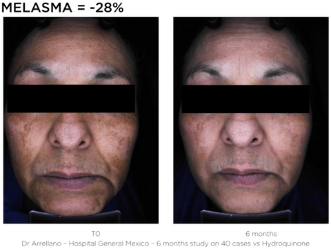 Bright Serum - MELASMA