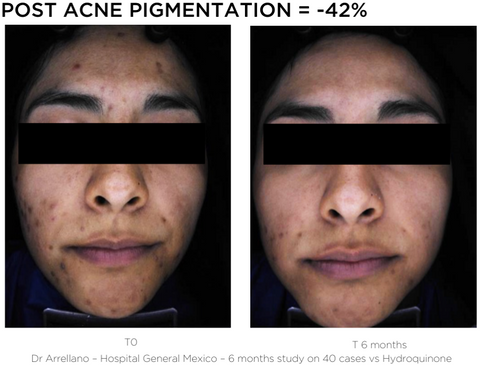 Bright Serum - Post Acne Pigmentation