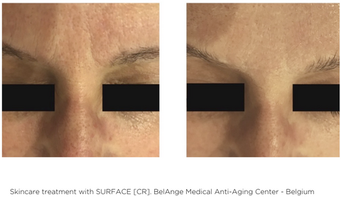 Surface CR Cream Treatment