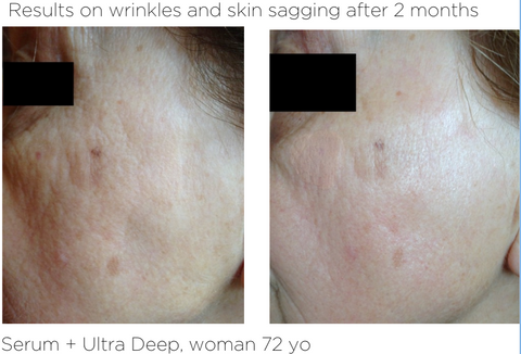 Ultra Deep - Results on wrinkles and skin sagging after 2 months