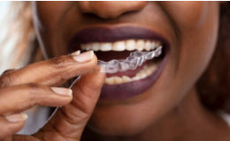 Woman wearing a dental guard; courtesy of IStockPhoto