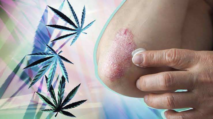 Can CBD support Psoriasis?
