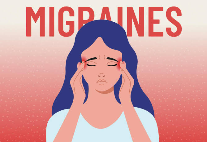 CBD for migraine pain relief