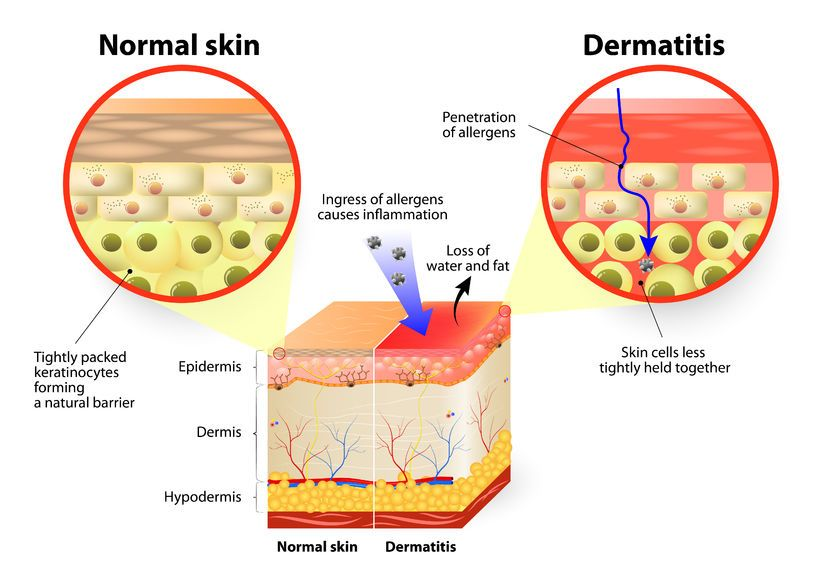 What Causes Eczema? Koaka Hemp Health and Skincare