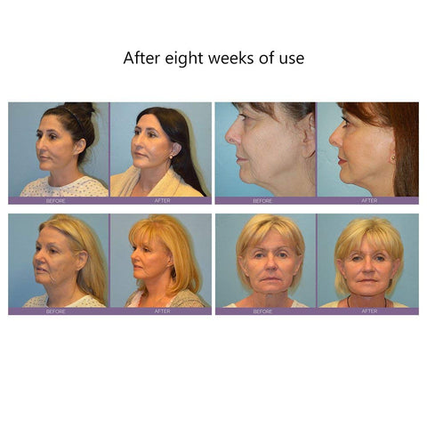 Facial Toning Device