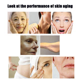 Face Lift Acne Remover RF Radio Frequency Massager Slimmer Anti Wrinkle Skin Tightening Machine Care Tools Papada Visage Lifting