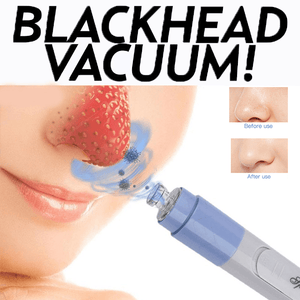 Blackhead Vacuum - Clevativity