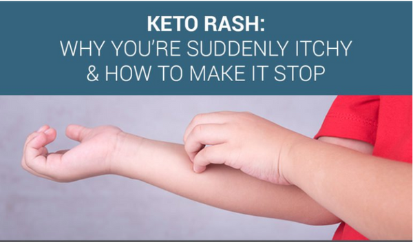 Keto Rash: Why You're Suddenly Itchy & How to Make it Go Away By Secure Keto