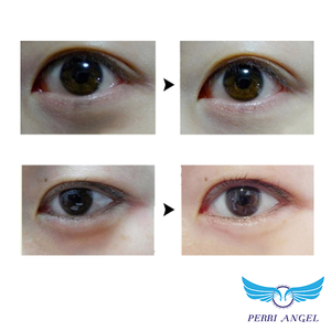 7Days Xanthelasma Eye Treatment Serum