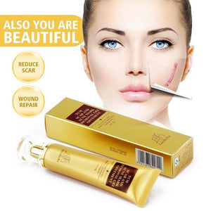 Super Acne & Scar - Removal Cream
