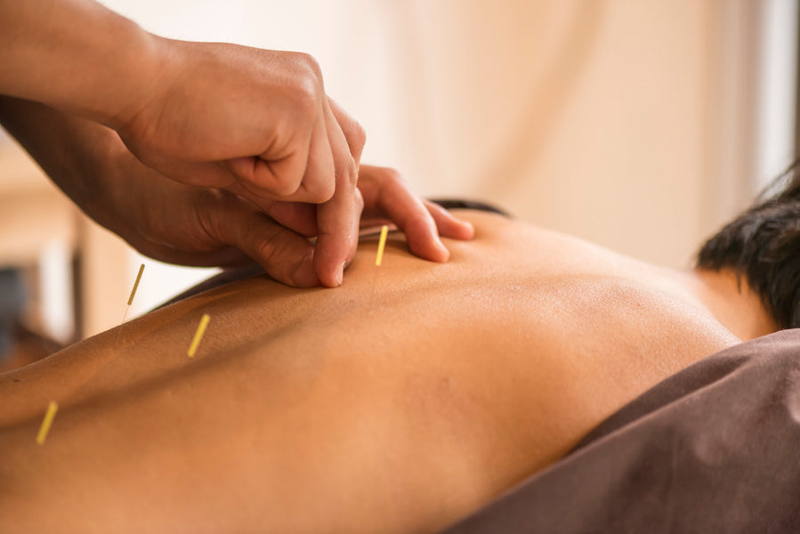 Acupuncture vs Natural Menopause Supplements